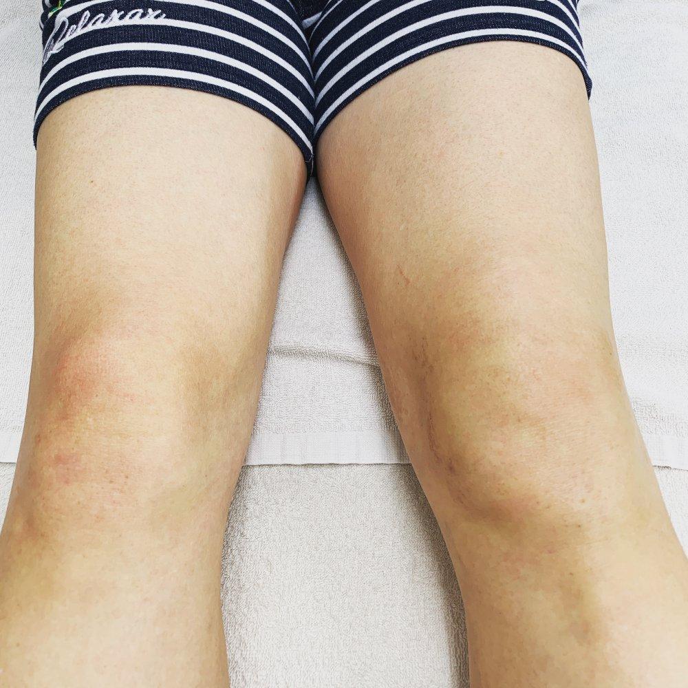 ボクササイズ・キックボクササイズでの膝の痛み