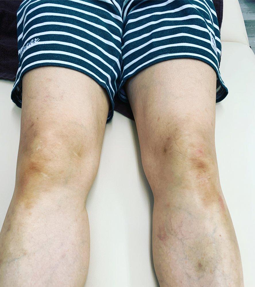 登山 膝の痛み