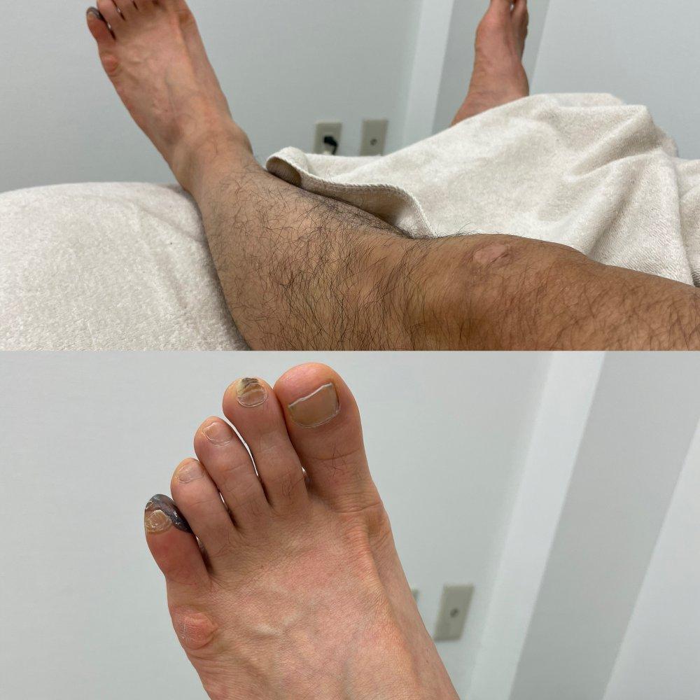 内反小趾 → 腸脛靭帯炎