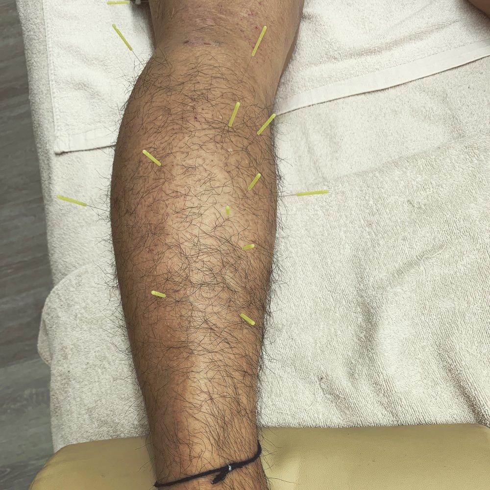〜治療例紹介〜  下腿三頭筋内側頭肉離れ