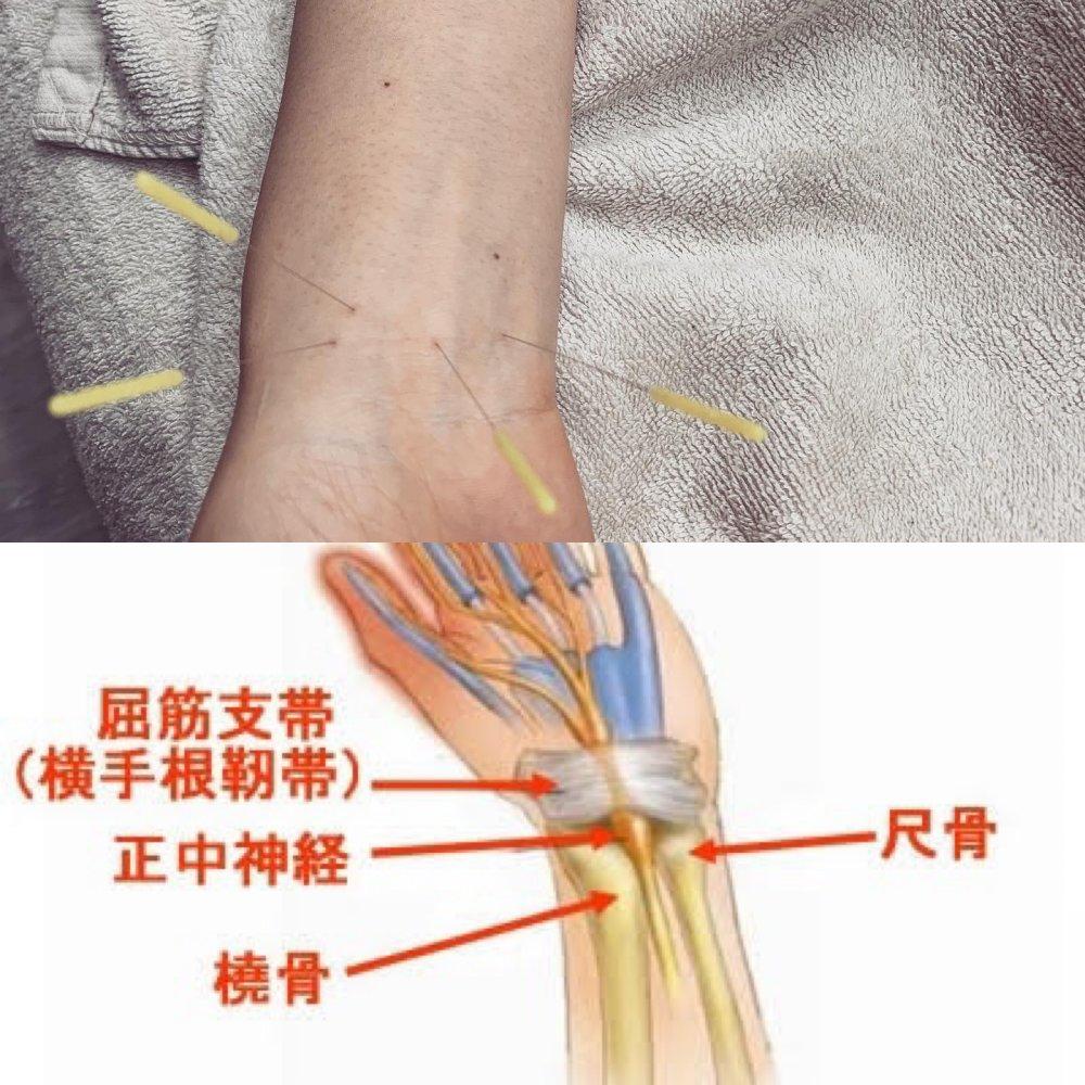 〜治療例紹介〜 妊産婦に多い手首の痛み